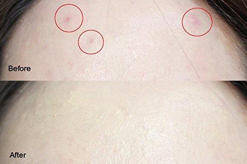 Kem-che-khuyết-điểm-Aritaum-All-Day-Tip-Concealer-Hàn-Quốc