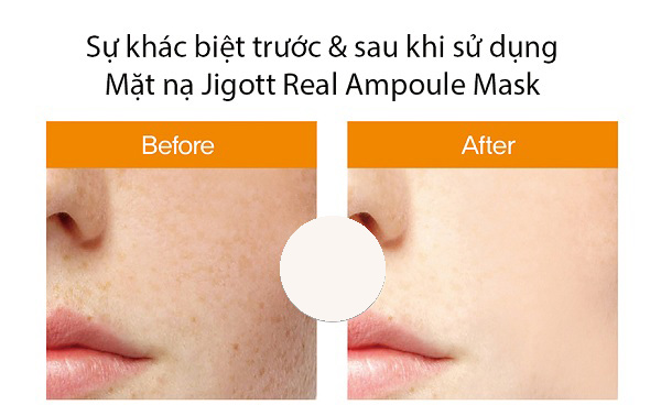 Mặt-Nạ-Jigott-Real-Natural-Ampoule-Sheet-Mask-Hyaluronic-Acid